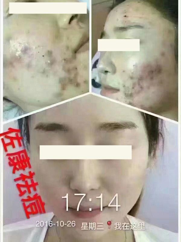 佐康祛痘成功案例