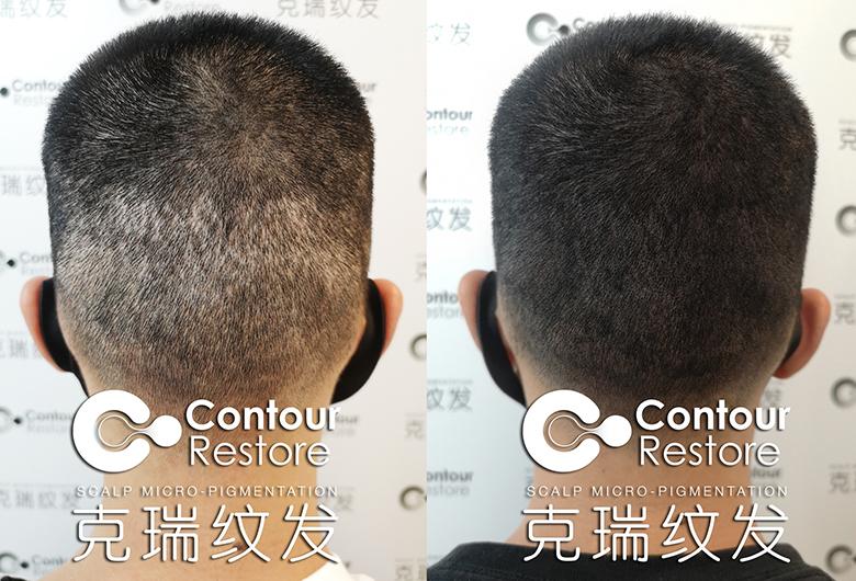 武汉专业纹发机构保证纹发安全