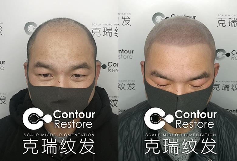头发加密培训