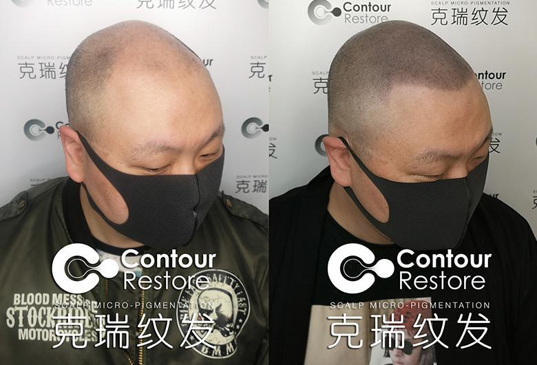 脱发纹发中心