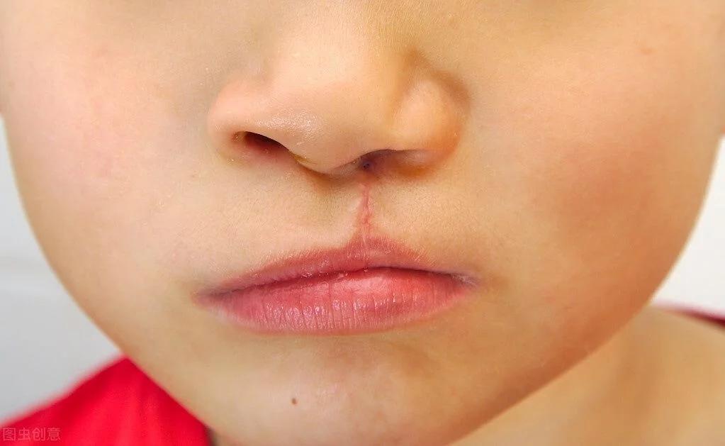 福州語言康復不能把唇腭裂孩子遺漏了