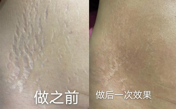 贵州祛妊娠纹培训学校:产后黄褐斑、剖腹产疤痕、妊娠纹一般怎么办?