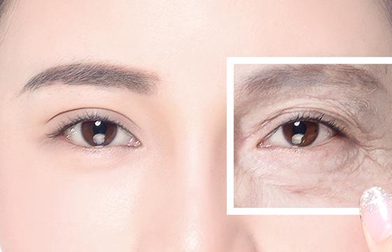 脸上长皱纹的原因 7种方法快速去除皱纹更高效