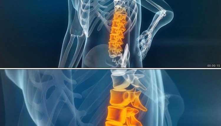 练习洗髓功后腰酸背痛怎么办?看完这篇文章你就懂了!