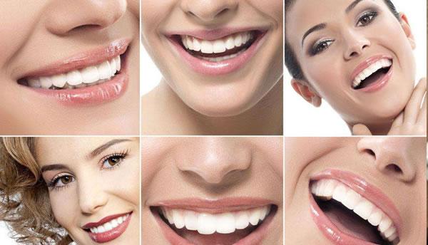 口腔瓷贴面牙齿美容