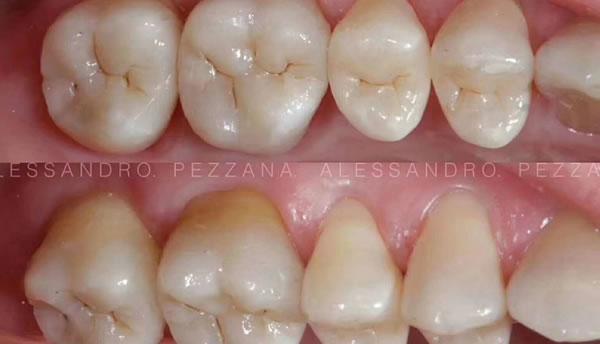 案例-补牙