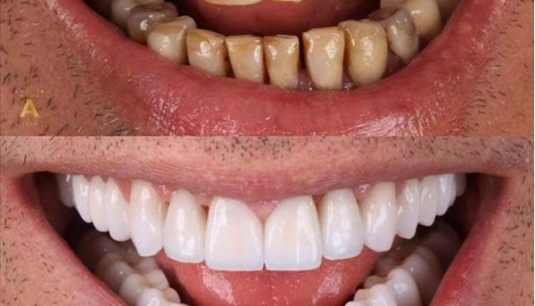 案例-牙齿美容美白
