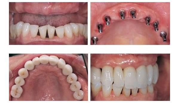 案例-种牙