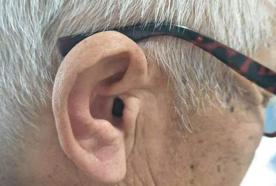 飞利浦助听器专卖店