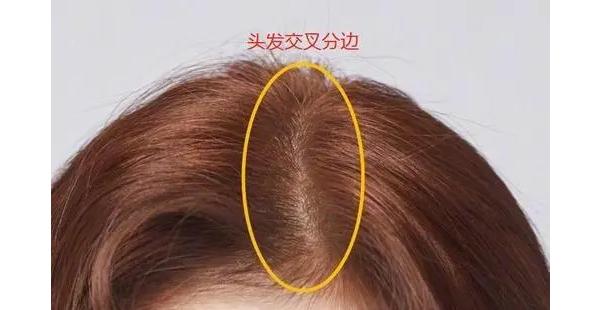 有姐妹问头发颅顶低怎么打理头发呢?这里有几条小技巧