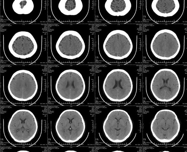 热敏胶片-脑CT
