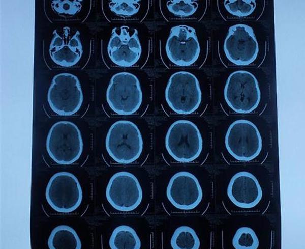 医用CT胶片