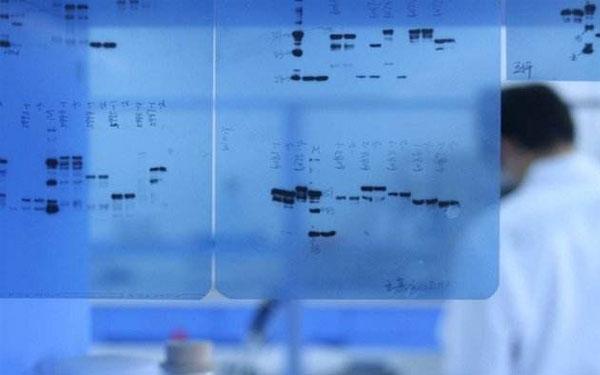 醫用打印膠片廠家淺析醫用X感光膠片的使用