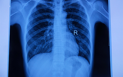 放射型醫療膠片的相關原理介紹