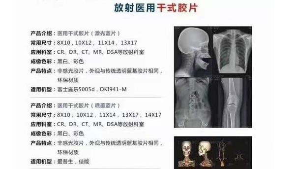 放射醫用干式膠片中的激光藍片的相關介紹