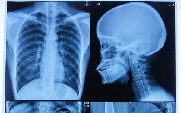 怎么測試醫用X射線膠片的感光性能?