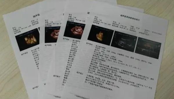 河南醫用B超膠片廠家