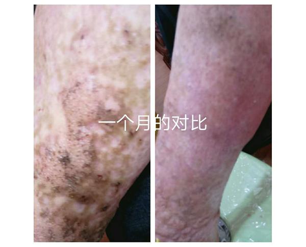 案例-皮肤病