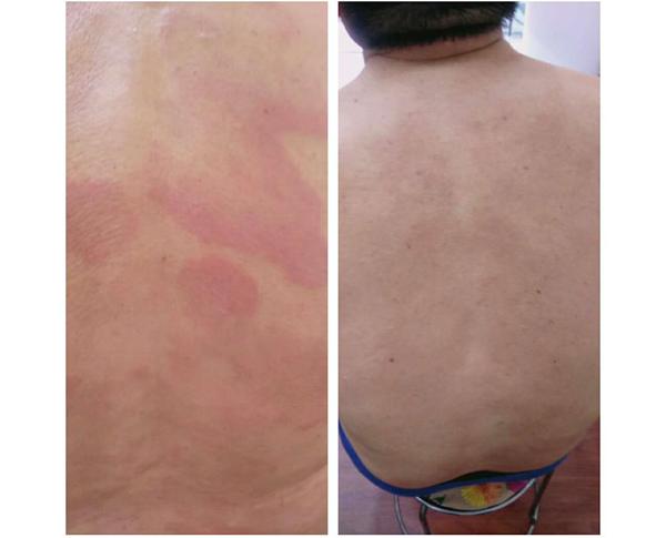 案例-皮肤疾病