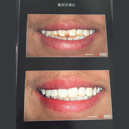 云南美牙培训机构教你正确保护牙齿