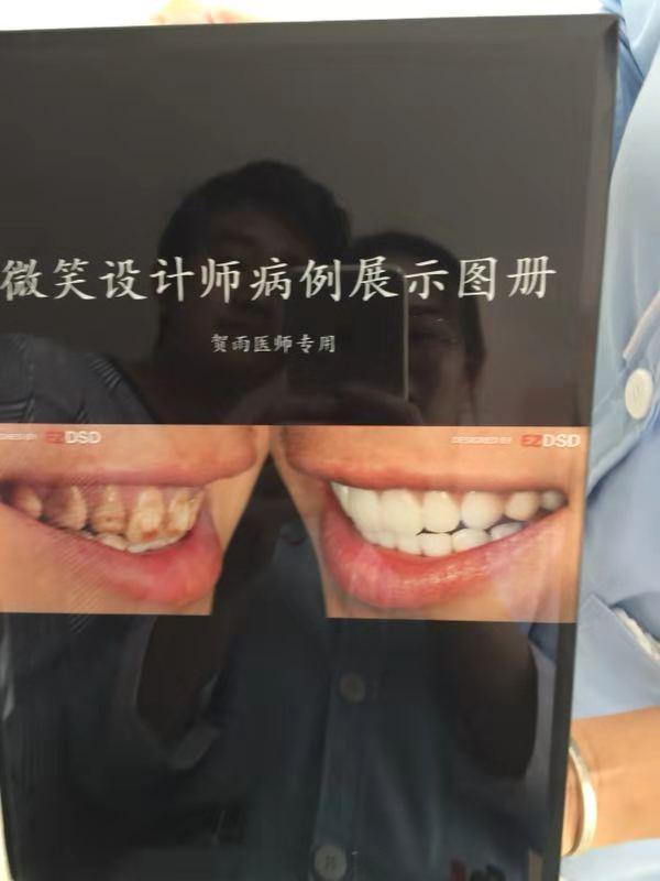 云南DSD微笑设计美牙培训