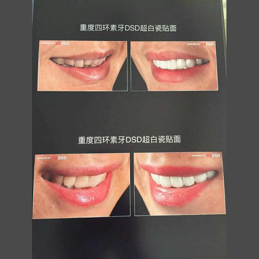 昆明德国BL树脂贴面美牙