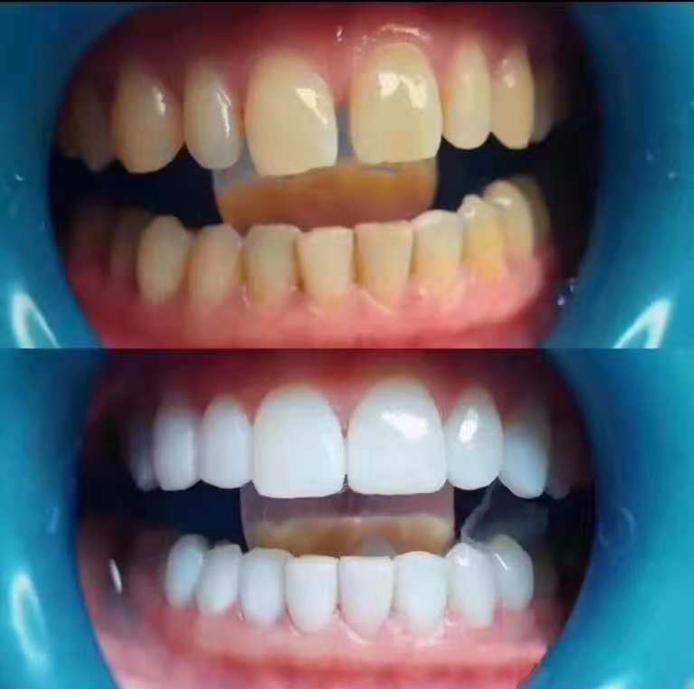 昆明树脂美牙贴面