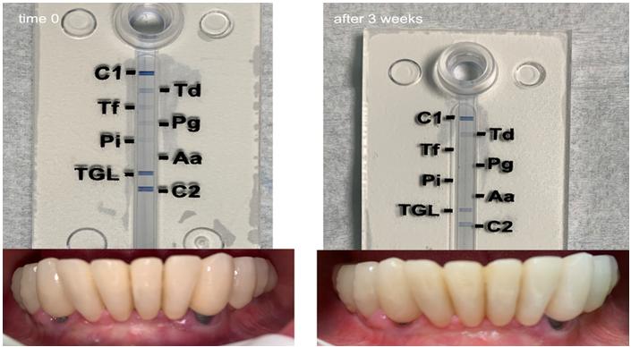 使用PARX塑料技术治疗3周后口腔内不再发现牙周炎细菌