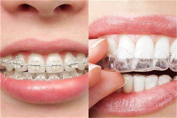 襄阳牙齿矫正