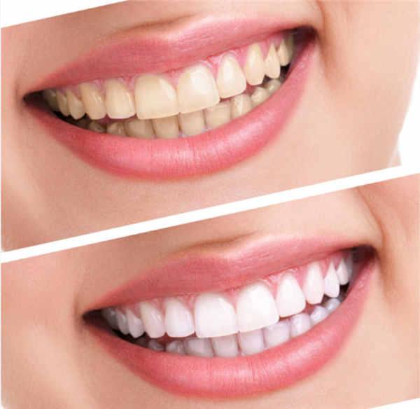襄阳牙齿美白