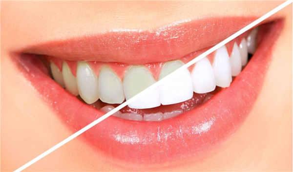 牙齿美白费用