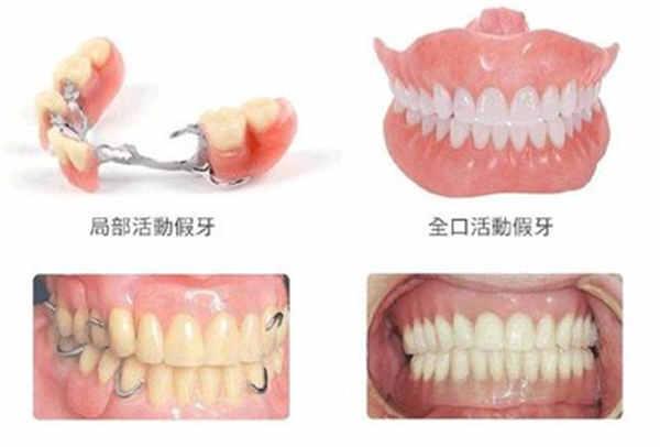 襄阳牙齿修复