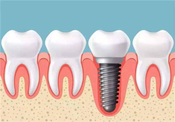牙齿种植技术