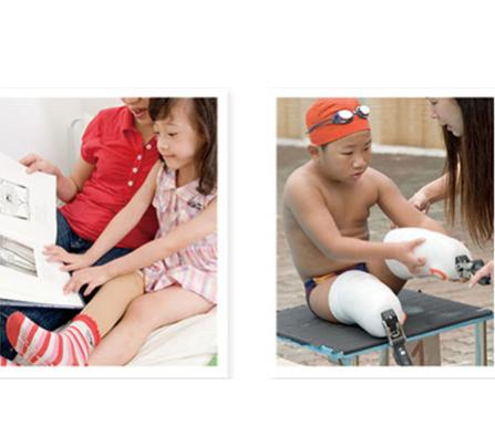 儿童假肢康复