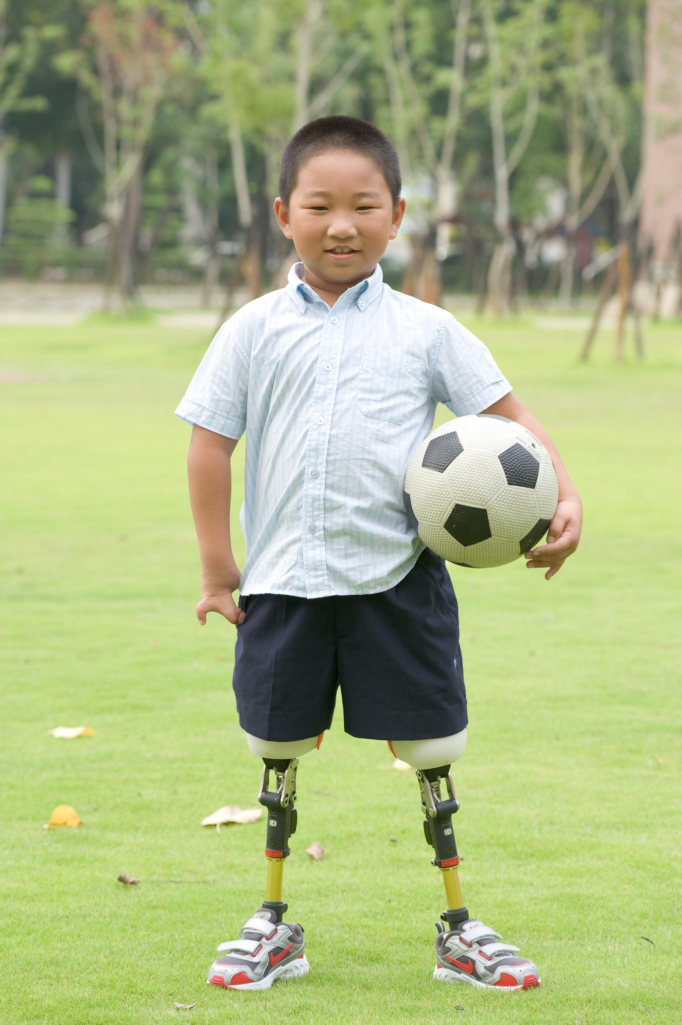 小腿假肢安装