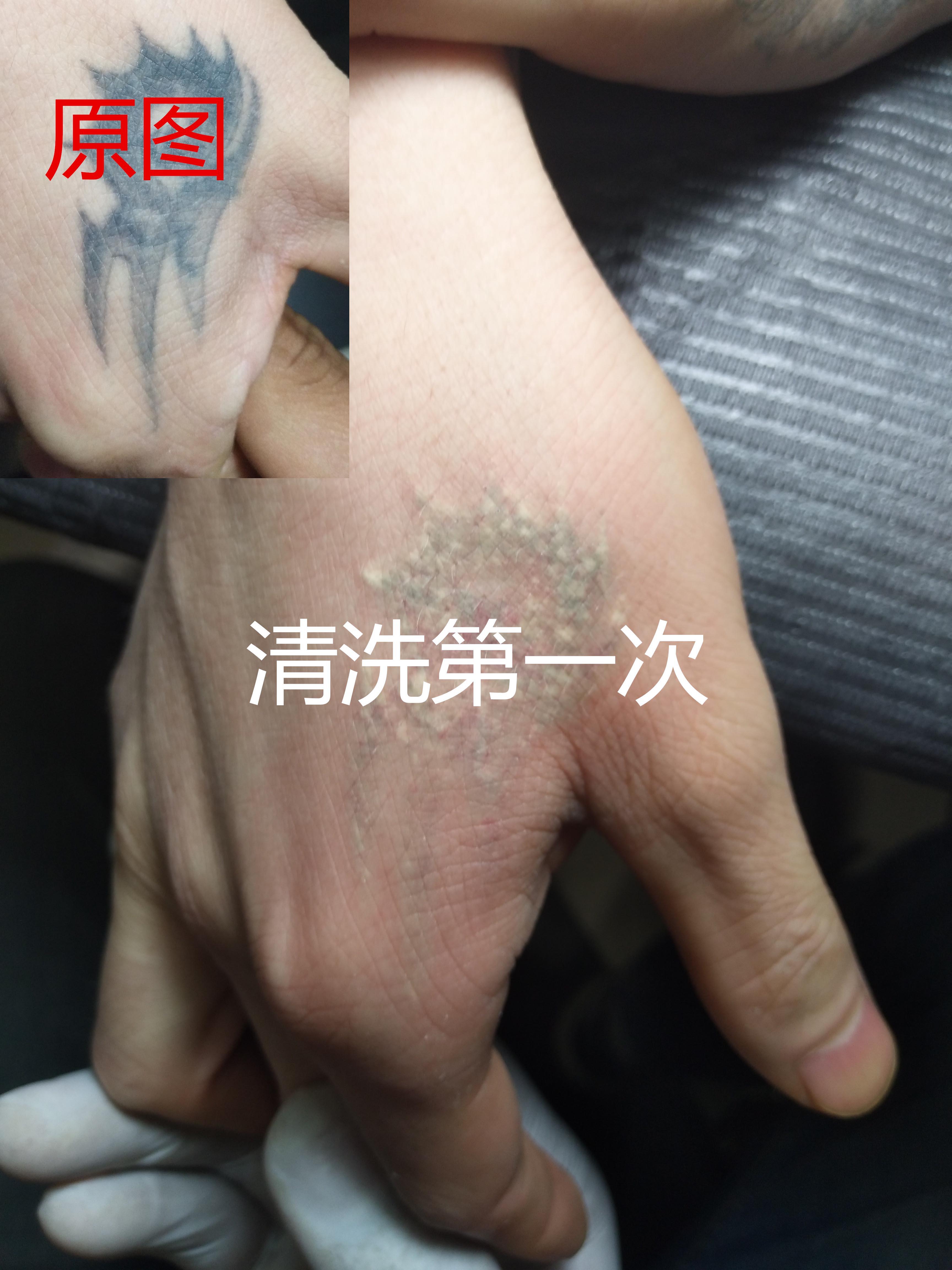 西安清洗纹身的多少钱