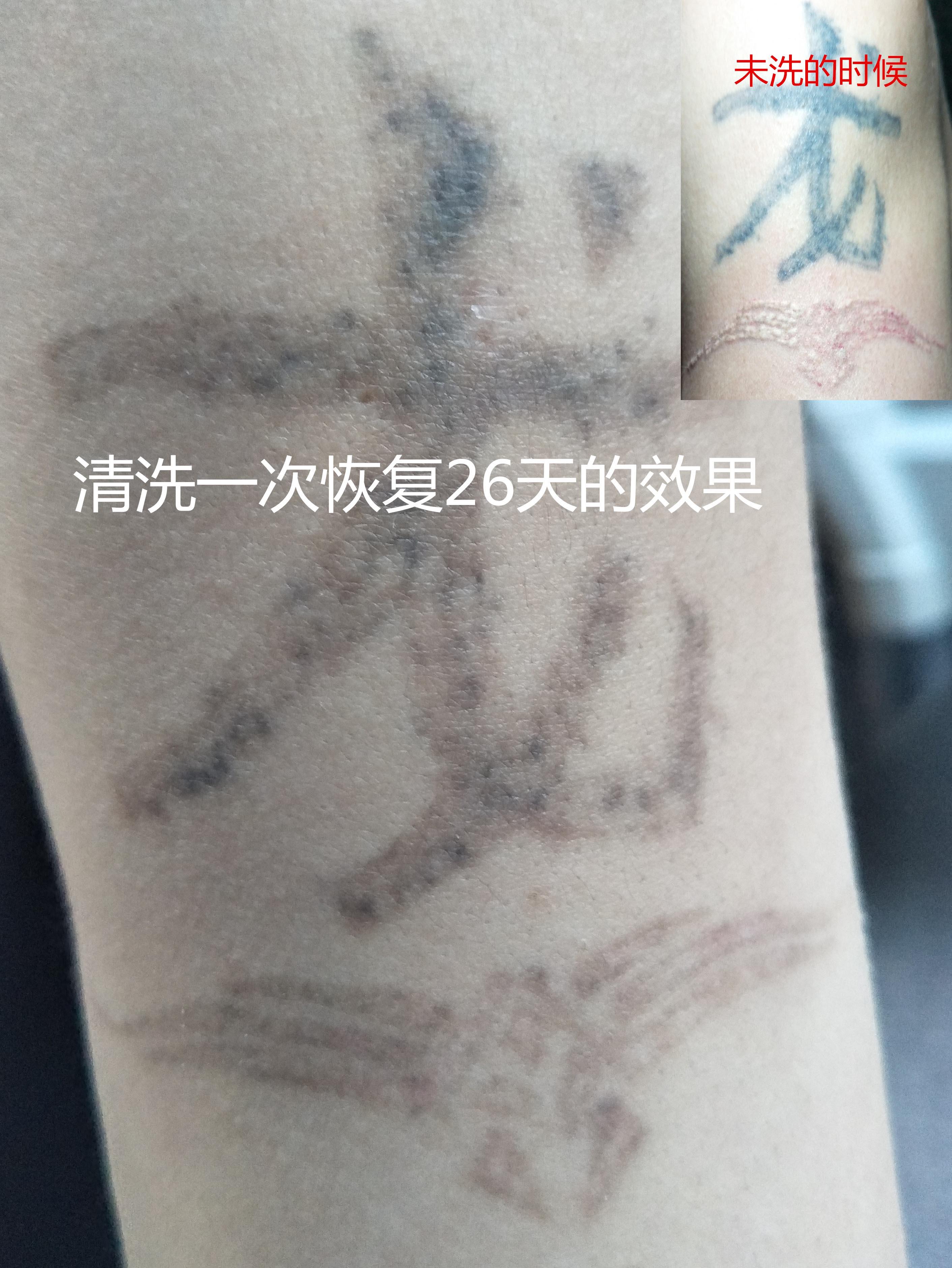 西安洗纹身多少钱