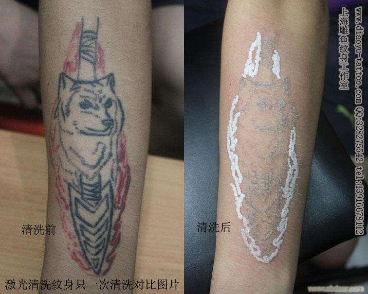 西安哪洗纹身