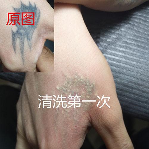西安清洗纹身