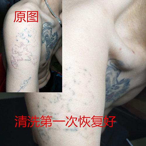 西安钟楼洗纹身