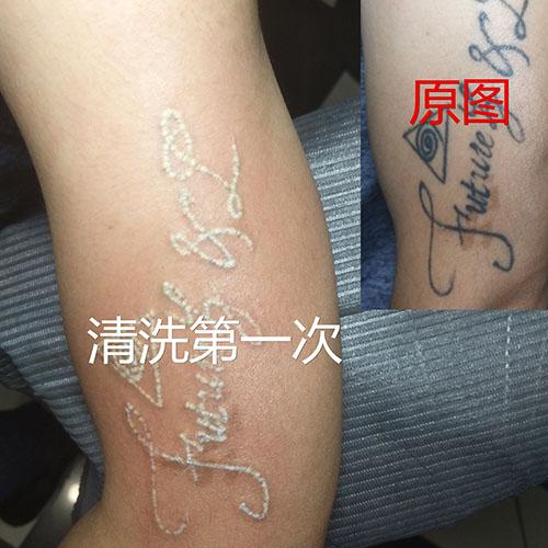西安纹身清洗