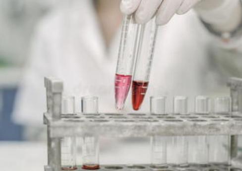食品中大肠杆菌的检测方法怎样进行分析?