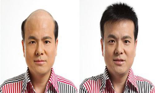 胶粘衔接隐形假发的常见生活方式问题