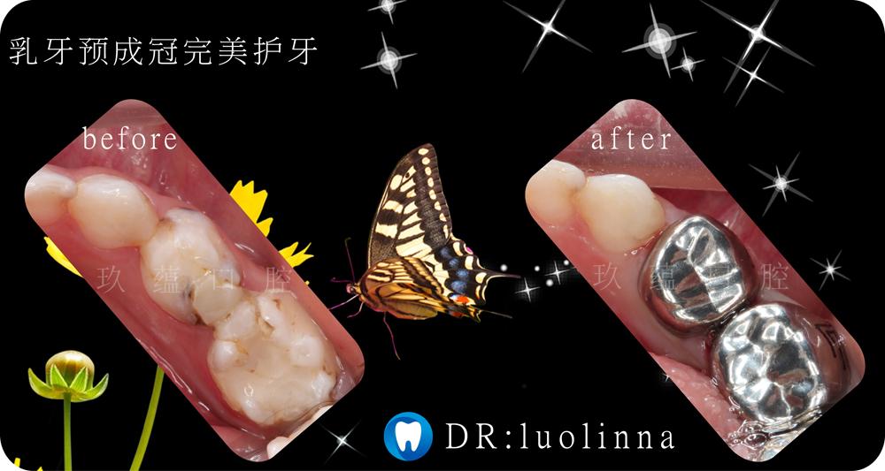昆明牙齿预成冠治疗哪家好