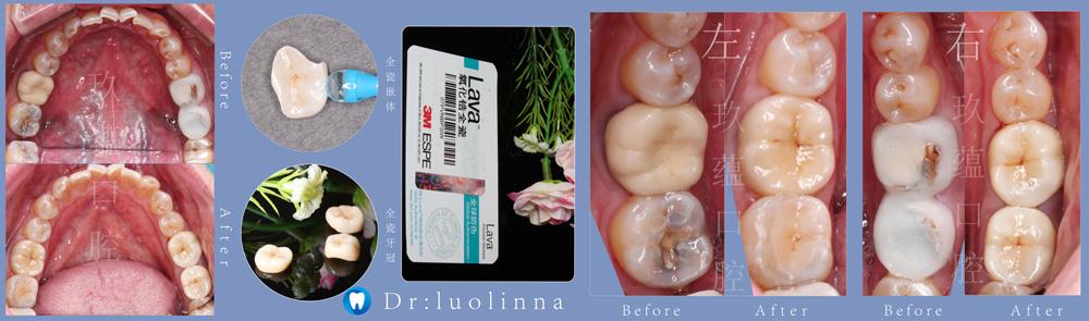 昆明牙齿综合治疗