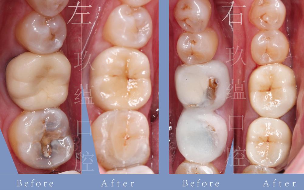综合治疗(牙周、美学)案例