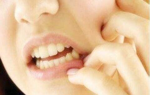 牙龈炎治疗
