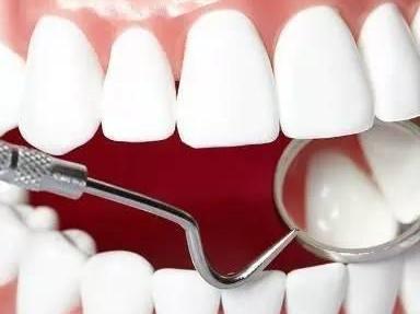 昆明四环素牙治疗价格