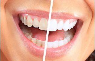 昆明氟斑牙治疗哪家好