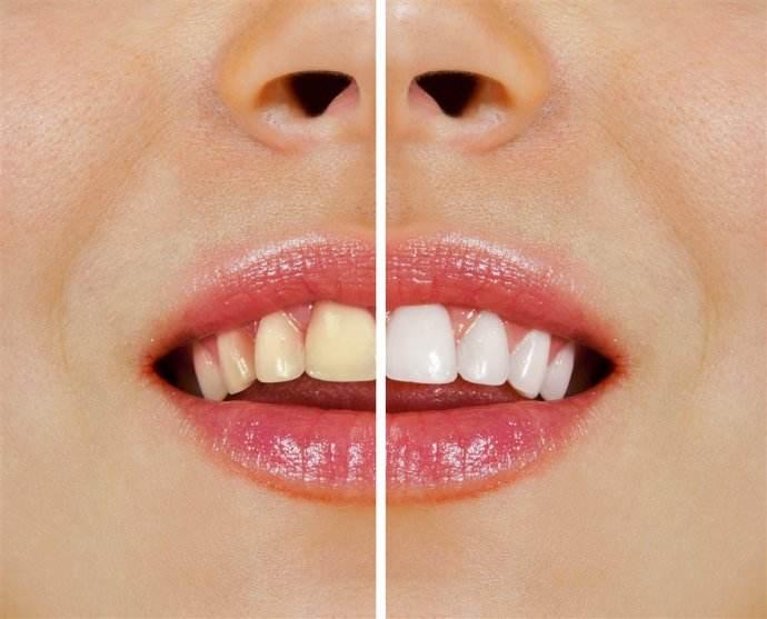 茶渍牙治疗